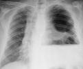 Empiema secundario a múltiples fístulas bronco-pleurales en carcinoma epidermoide de pulmón / Empyema secondary to multiple broncho-pleural fistulas in squamous cell carcinoma of the lung