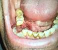 Rabdomiosarcoma primario de cavidad oral / Primary Rhabdomyosarcoma of oral cavity