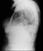 Enfisema subcutáneo / Subcutaneous Emphysema