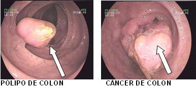 Pólipo de colon y cáncer de colon